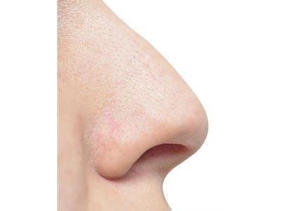 patologie naso