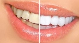 pulizia denti, prevenzione dentale, zooliografie