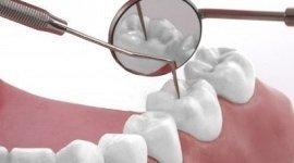 pulizia denti, estrazioni dentali, igiene orale