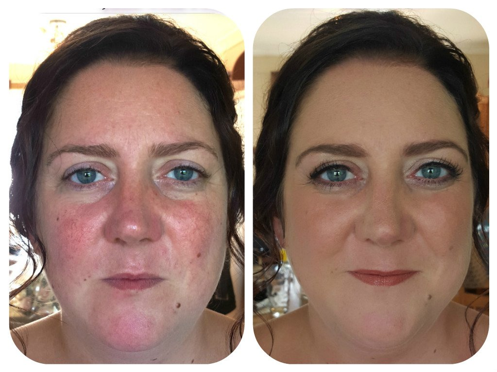 bridal glow- before and after