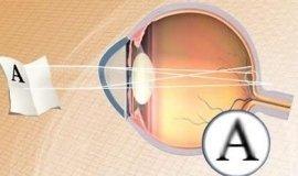 astigmatismo, laser astigmatismo, cura astigmatismo