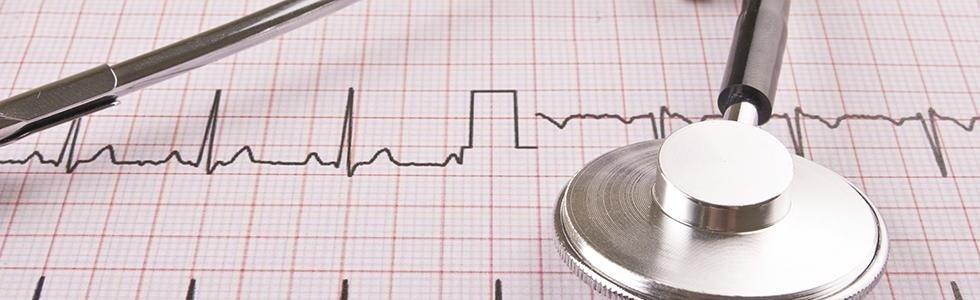 esame ecocardiografico