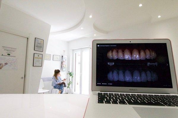 pc con i denti nello schermo