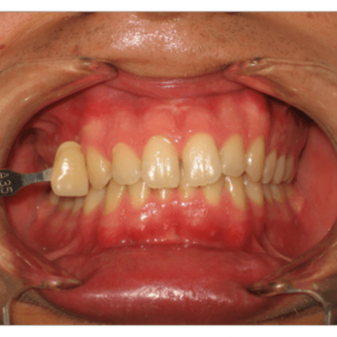 estetica del sorriso, ingiallimento denti, denti gialli
