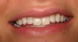 cura dei denti, prevenzione carie, alitosi