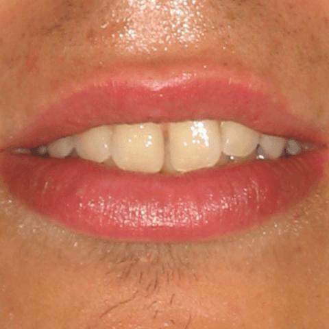 cosmesi dentale, trattamento denti, cure dentistiche