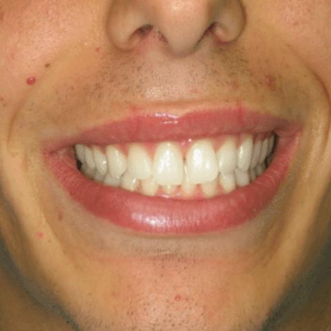 sorriso smagliante, carie, servizi dentistici