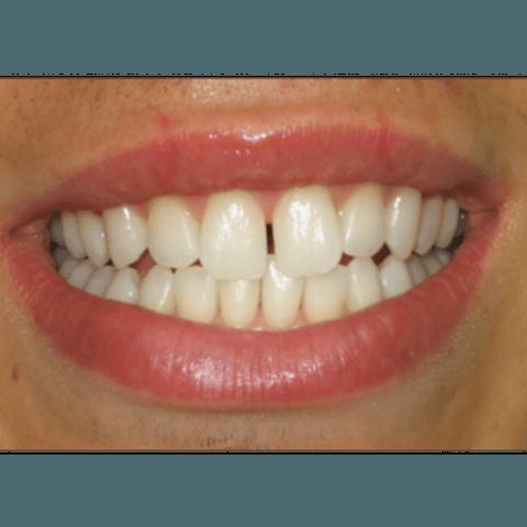 interventi dentistici, eliminazione tartaro, detartrasi