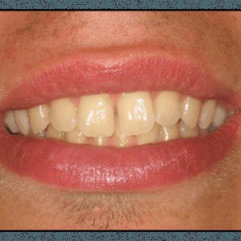sbiancamento denti, visite dentistiche, igienista orale