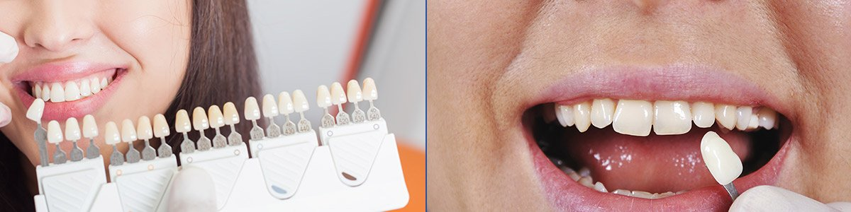 hanover dental care crowns and bridges
