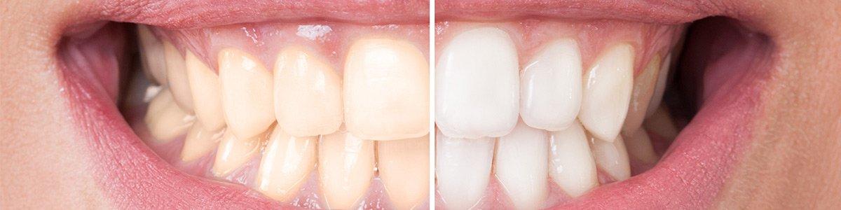 hanover dental care teeth whitening