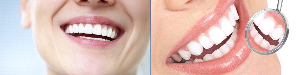 hanover dental care veneers