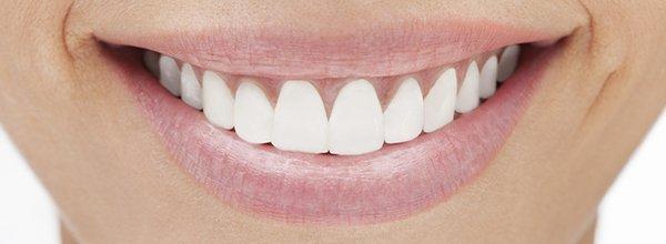 hanover dental care teeth bleaching