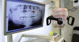 otturazioni, devitalizzazioni, implantologia