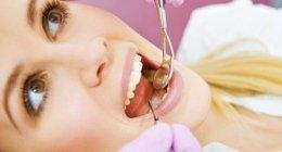 apicectomia, estrazione dei denti, sbiancatura denti
