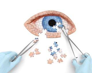 cura patologi occhio