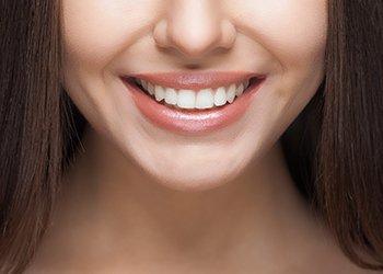 woden dental centre women smiling