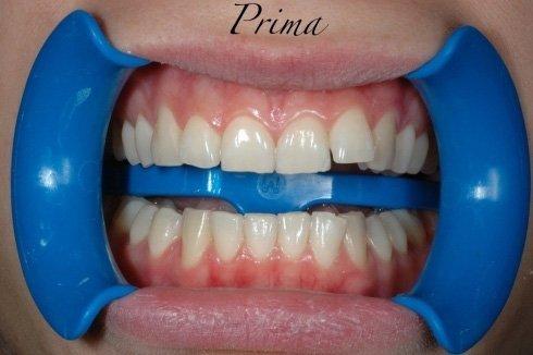 denti prima dello sbiancamento