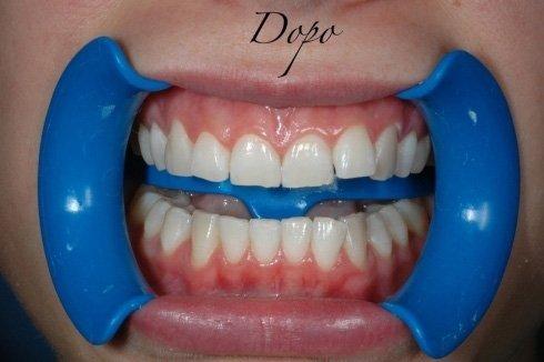 denti dopo lo sbiancamento