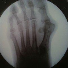 radiografia alluce, radiografie, rx piede