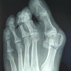 impianti endoprotesici, protesi inversa, alluce valgo