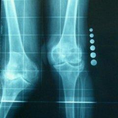 installazione protesi, protesi rotula, protesi tibia