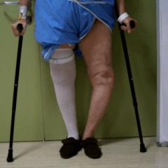 ginocchio varo artrosico, protesi per ginocchio varo, ortopedici qualificati
