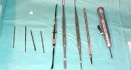 esami ortopedici, operazioni all'alluce, alluce percutaneo