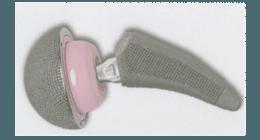 titanio poroso, protesi su misura, protesi personalizzate