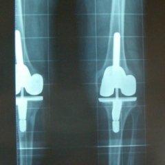 rx ginocchio con protesi, rx ginocchio valgo, radiografia protesi ginocchio