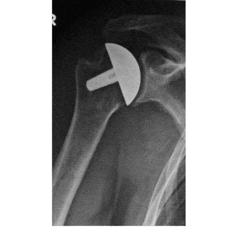 protesi spalla, protesi articolazioni, chirurgia della mano
