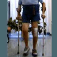 realizzazione protesi, costruzione protesi, medici