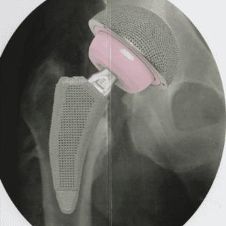 chirurgia protesica d'anca, chirurghi ortopedici, ambulatorio ortopedico