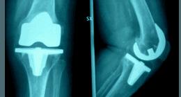 rx ginocchio, protesi per ginocchio valgo, protesi femore