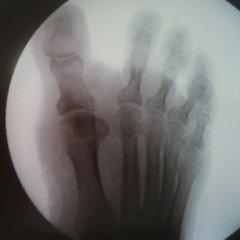 lastre, radiologia, rx alluce