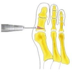 prima falange alluce, osteotomia correttiva prima falange, operazioni all