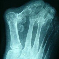 chirurgia invasiva, rx scopica, rimedi ortopedici