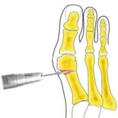 osteotomia, asportazioni percutanee, osteotomia correttiva metarsale