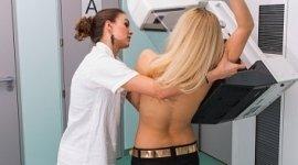 mammografia, assistente che aiuta la paziente, paziente di schiena