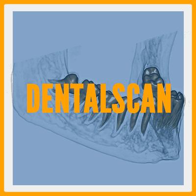 Dentalscan