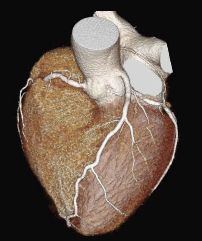 Cardio tac