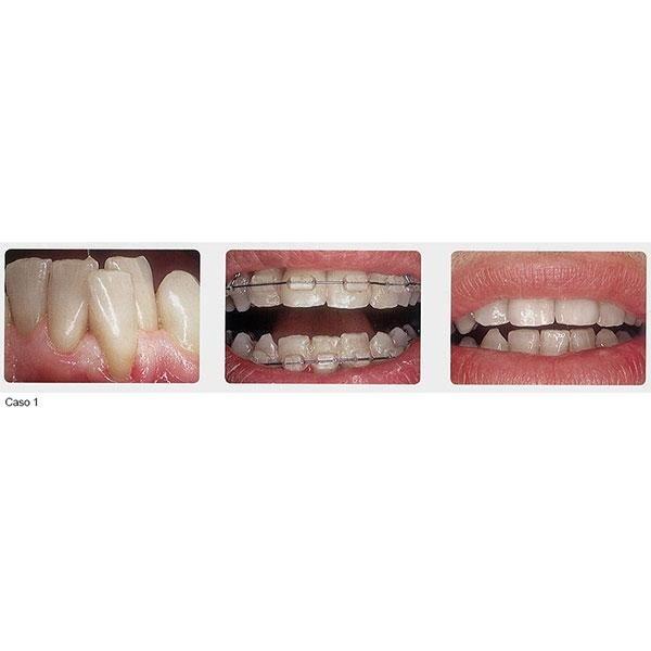 ortodonzia studio ortuso