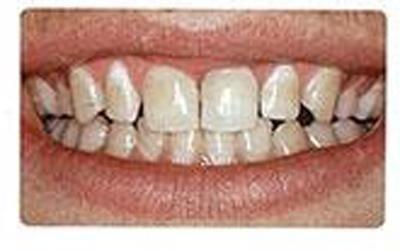 cura e pulizia denti