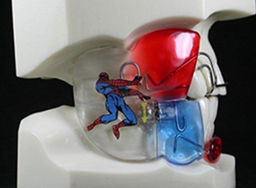 apparecchio spiderman