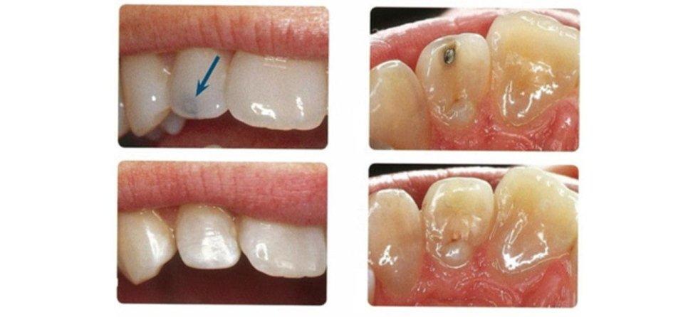 ortodonzia conservativa