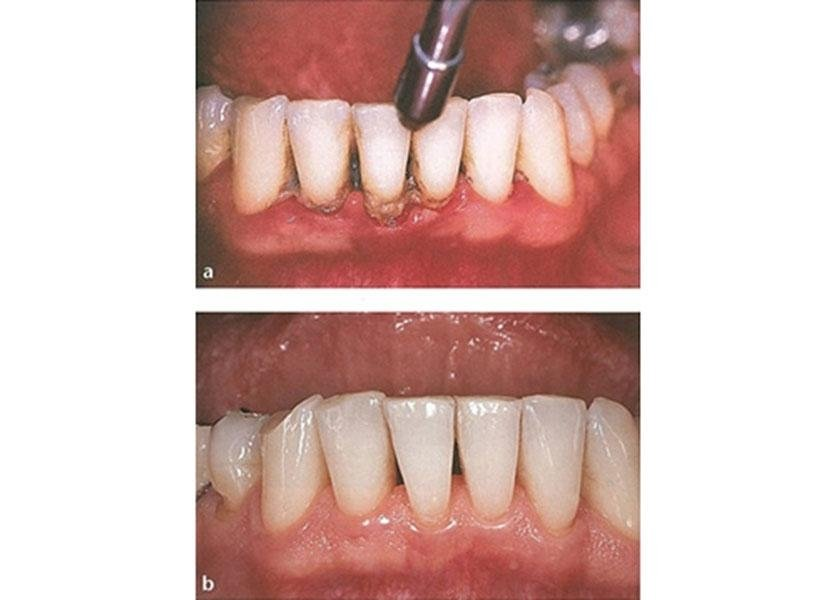 servizi denti