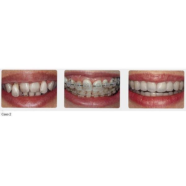 servizio ortodonzia
