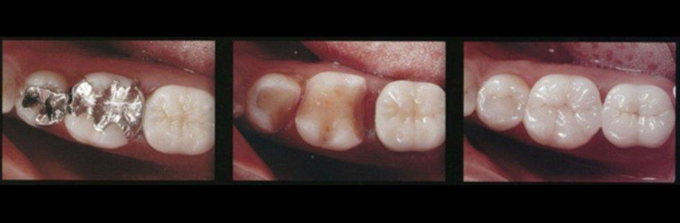 servizi ortodonzia conservativa