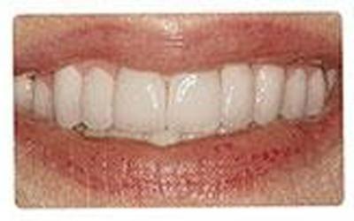 interventi estetici denti