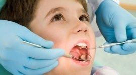 igiene dentale, detartrasi, pulizia dei denti